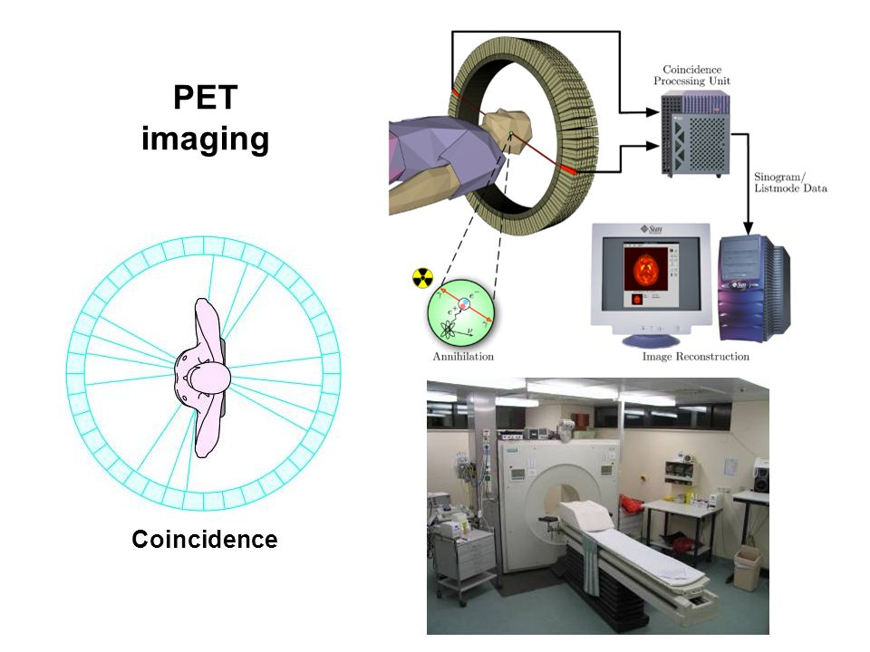 PET imaging Coincidence