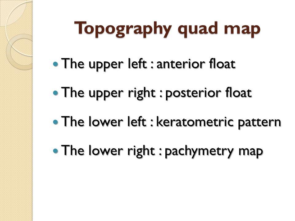 Topography quad map The upper left : anterior float The upper left : anterior float The upper right : posterior float The upper right : posterior floa