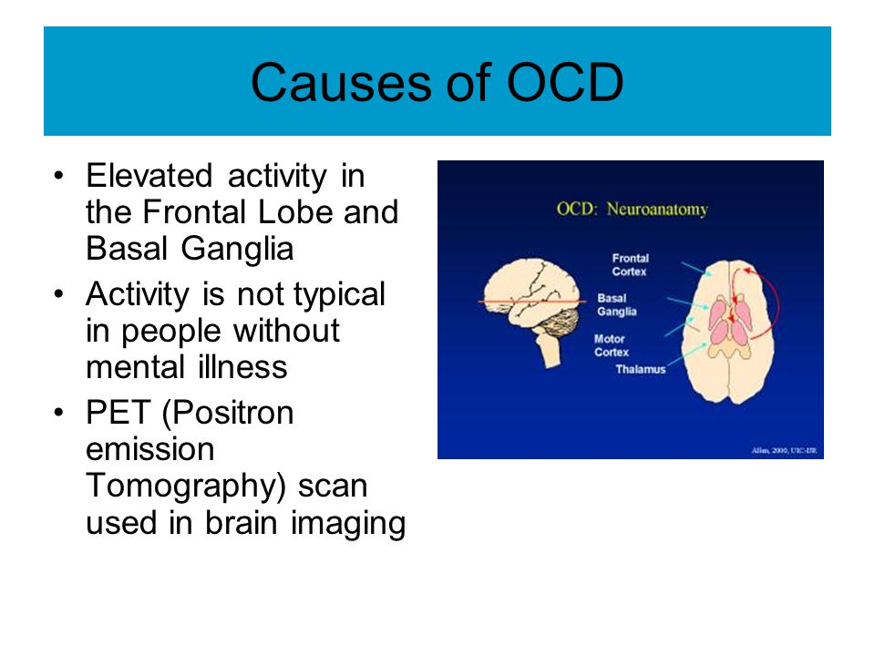 Causes of OCD Elevated activity in the Frontal Lobe and Basal Ganglia Activity is not typical in people without mental illness PET (Positron emission