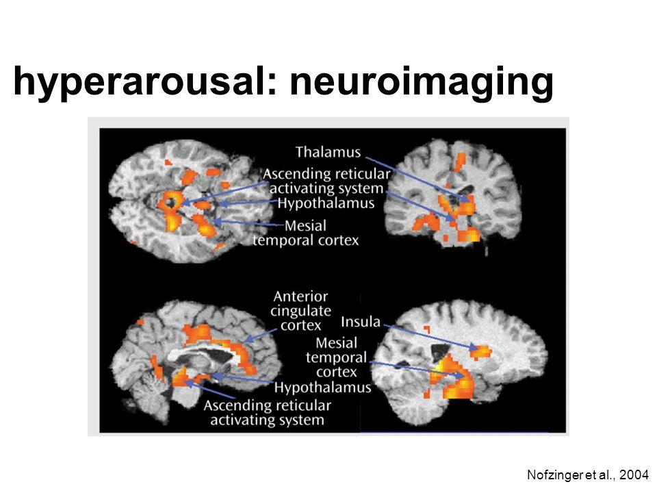 hyperarousal: neuroimaging
