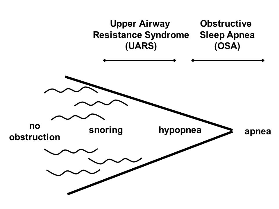 no obstruction hypopneasnoring apnea Obstructive Sleep Apnea (OSA) Upper Airway Resistance Syndrome (UARS)