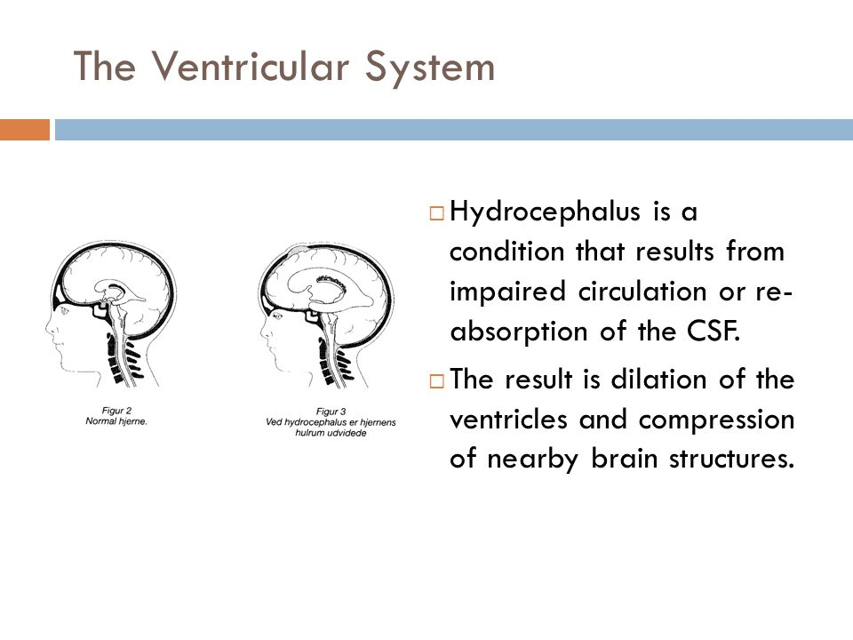 The Ventricular System  Hydrocephalus is a condition that results from impaired circulation or re- absorption of the CSF.