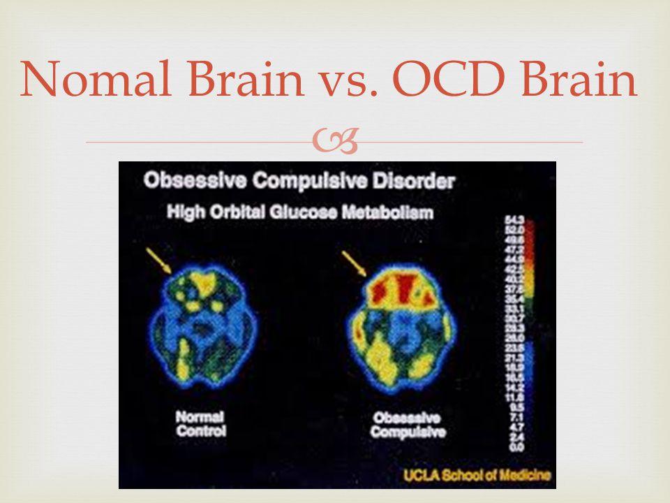  Nomal Brain vs. OCD Brain