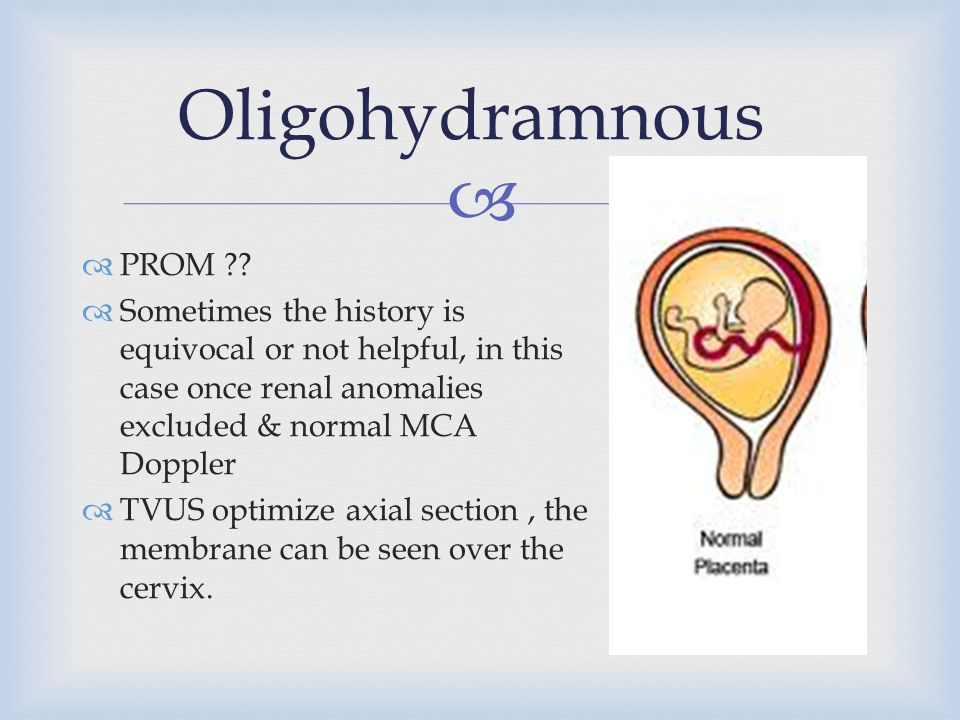  Oligohydramnous  PROM ??  Sometimes the history is equivocal or not helpful, in this case once renal anomalies excluded & normal MCA Doppler  TVU