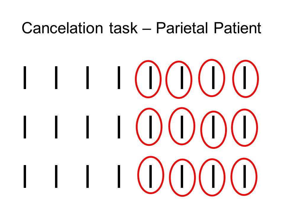 Cancelation task – Parietal Patient