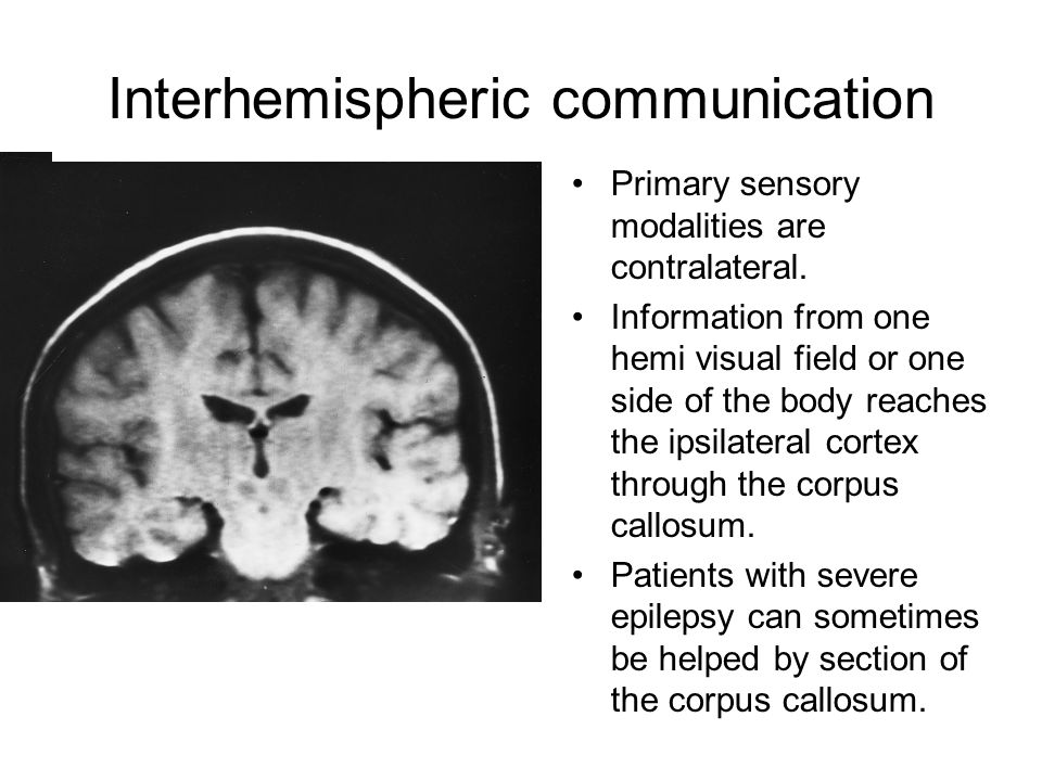 Interhemispheric communication Primary sensory modalities are contralateral.