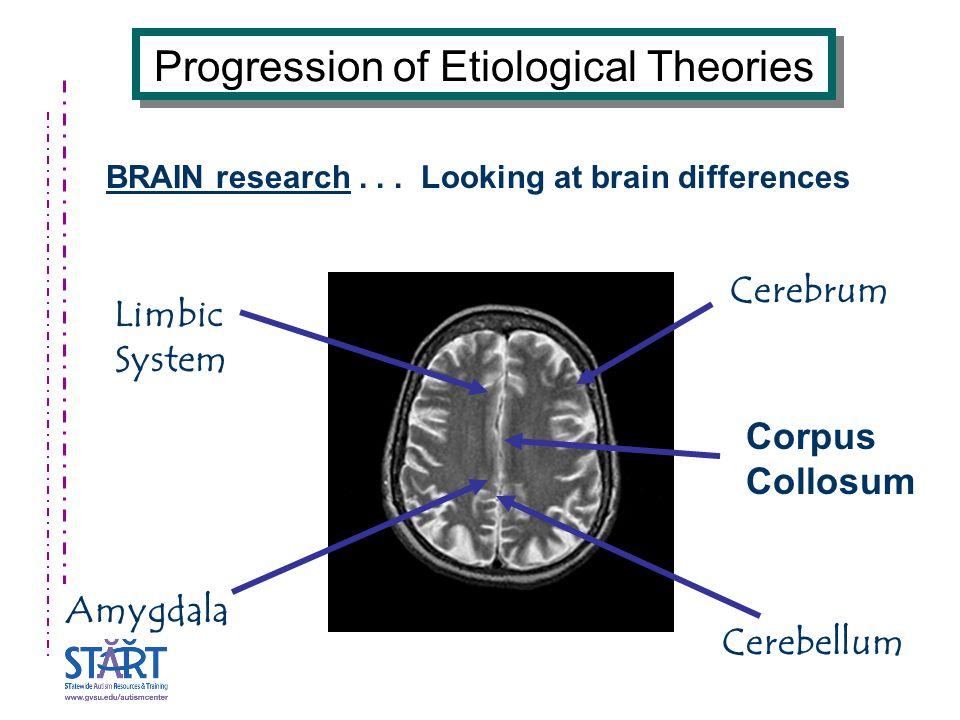 Cerebellum Limbic System Cerebrum Amygdala Progression of Etiological Theories BRAIN research...