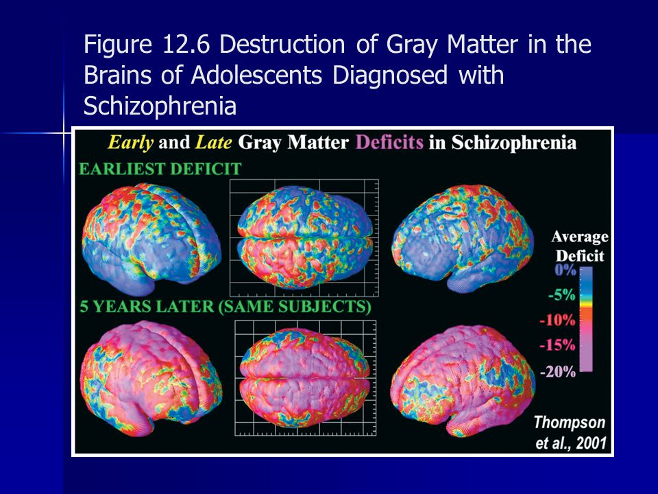 Figure 12.6 Destruction of Gray Matter in the Brains of Adolescents Diagnosed with Schizophrenia