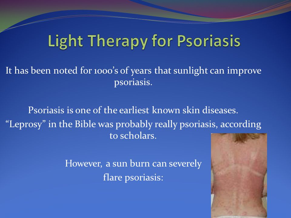 """It has been noted for 1000's of years that sunlight can improve psoriasis. Psoriasis is one of the earliest known skin diseases. """"Leprosy"""" in the Bibl"""