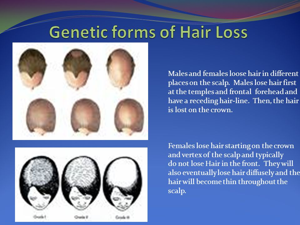 Males and females loose hair in different places on the scalp. Males lose hair first at the temples and frontal forehead and have a receding hair-line