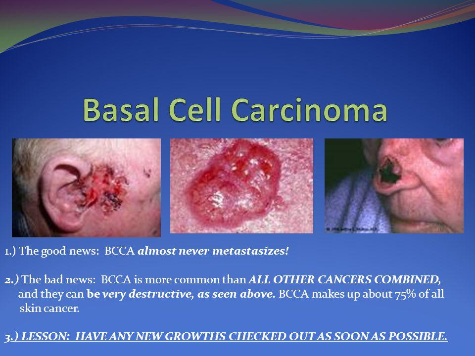 1.) The good news: BCCA almost never metastasizes.