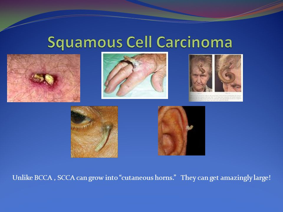 """Unlike BCCA, SCCA can grow into """"cutaneous horns."""" They can get amazingly large!"""