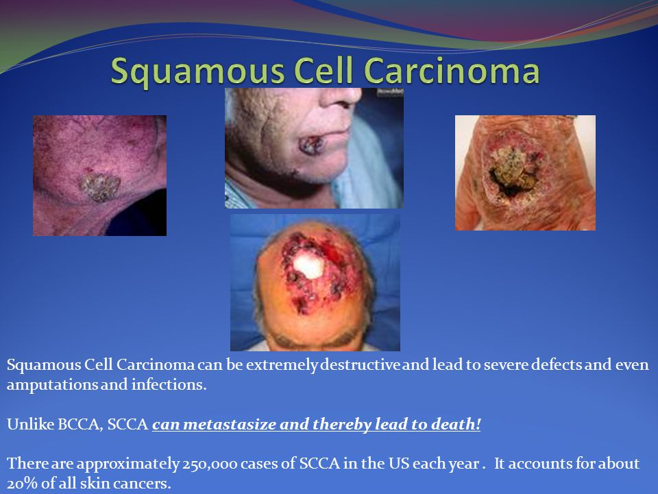 Squamous Cell Carcinoma can be extremely destructive and lead to severe defects and even amputations and infections. Unlike BCCA, SCCA can metastasize