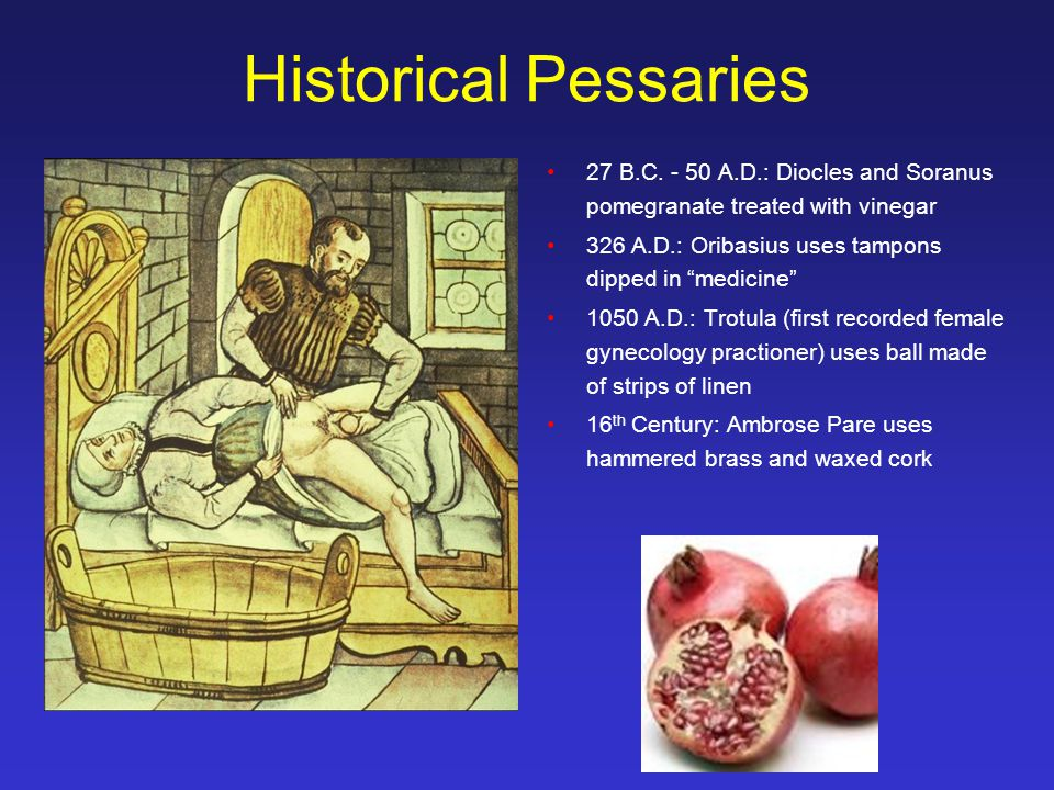 Historical Pessaries 27 B.C.
