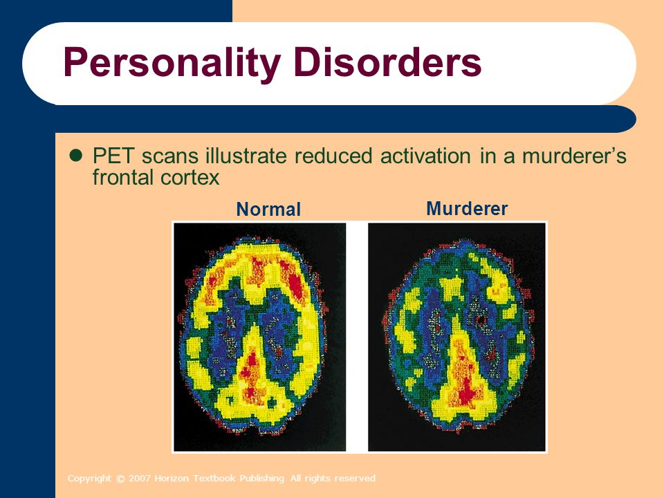Copyright © 2007 Horizon Textbook Publishing All rights reserved Personality Disorders PET scans illustrate reduced activation in a murderer's frontal