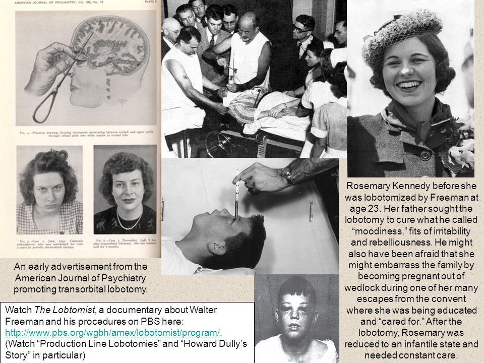 An early advertisement from the American Journal of Psychiatry promoting transorbital lobotomy. Rosemary Kennedy before she was lobotomized by Freeman