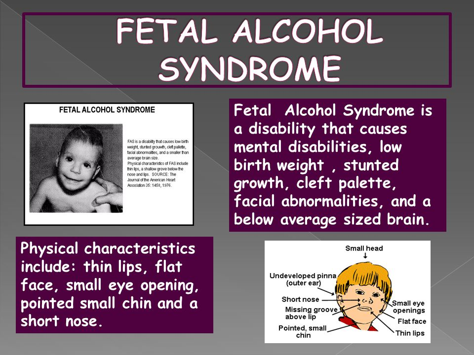 Fetal Alcohol Syndrome is a disability that causes mental disabilities, low birth weight, stunted growth, cleft palette, facial abnormalities, and a below average sized brain.