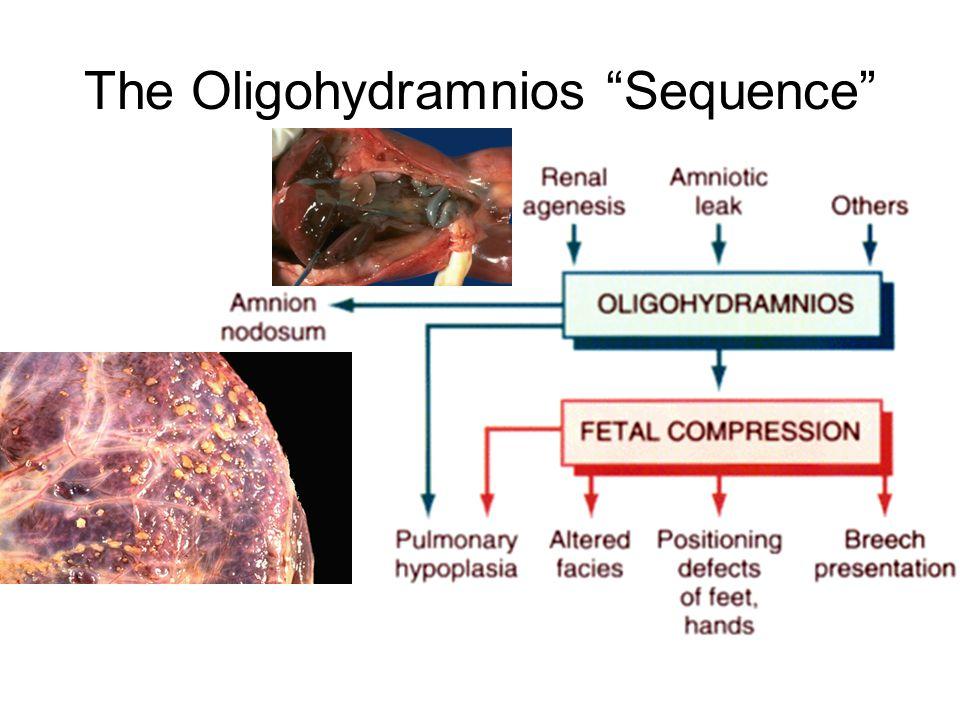 "The Oligohydramnios ""Sequence"""