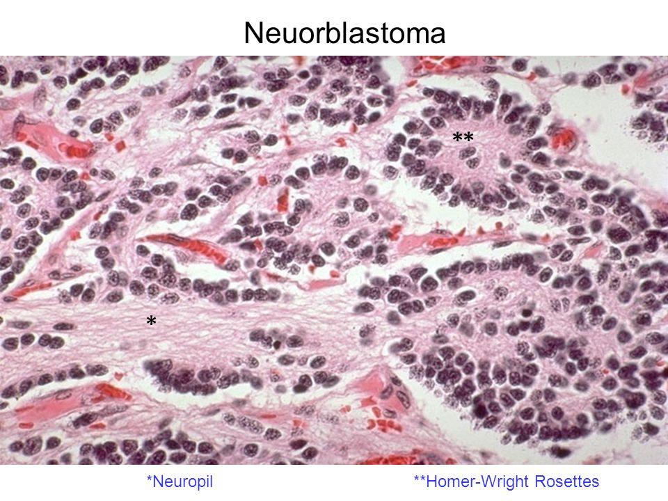 Neuorblastoma *Neuropil**Homer-Wright Rosettes * **