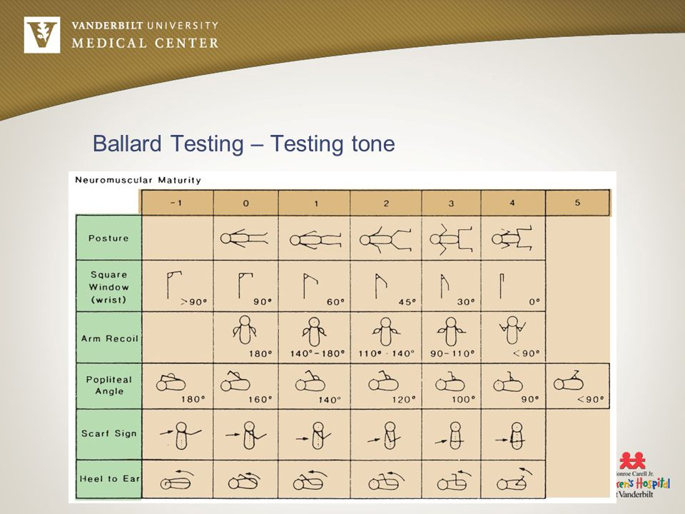 Ballard Testing – Testing tone