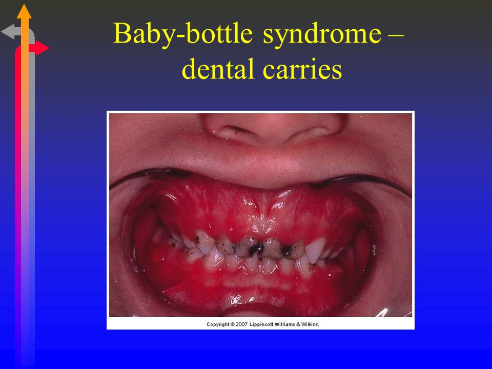 Baby-bottle syndrome – dental carries