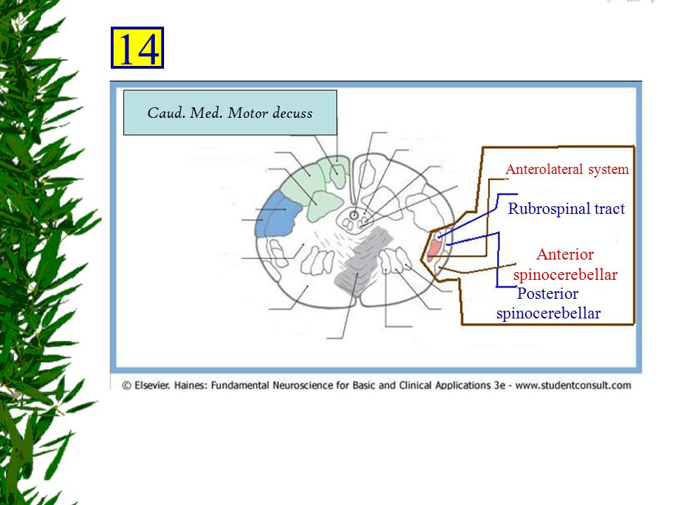 Anterolateral system Rubrospinal tract Anterior spinocerebellar Posterior spinocerebellar 14 Caud. Med. Motor decuss