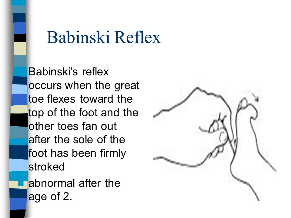 Babinski Reflex Babinski's reflex occurs when the great toe flexes toward the top of the foot and the other toes fan out after the sole of the foot ha