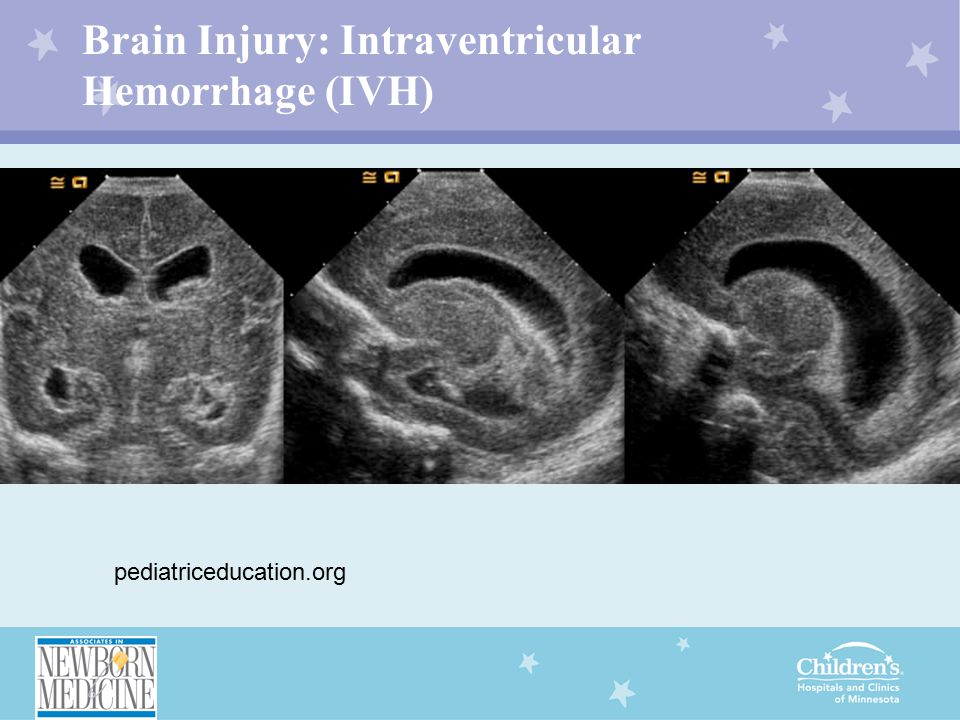 Brain Injury: Intraventricular Hemorrhage (IVH) ssf pediatriceducation.org