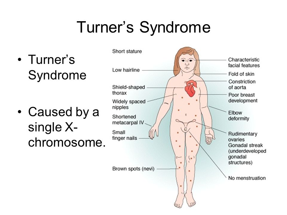Turner's Syndrome Caused by a single X- chromosome.