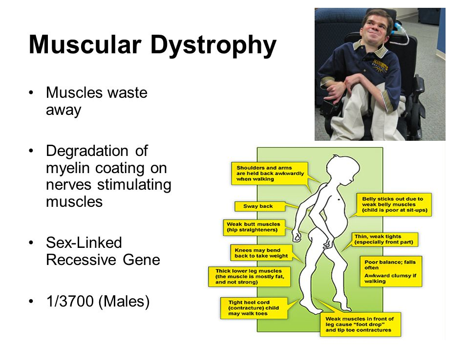 Muscular Dystrophy Muscles waste away Degradation of myelin coating on nerves stimulating muscles Sex-Linked Recessive Gene 1/3700 (Males)