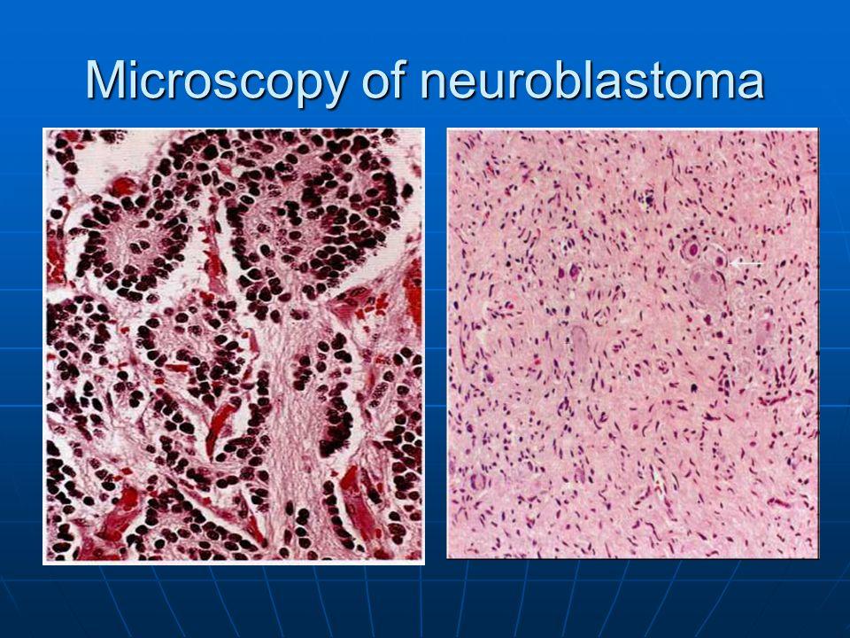 Microscopy of neuroblastoma