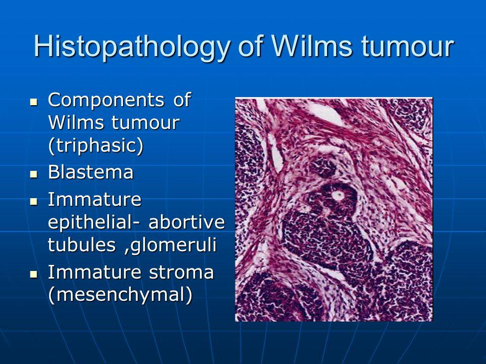 Histopathology of Wilms tumour Components of Wilms tumour (triphasic) Components of Wilms tumour (triphasic) Blastema Blastema Immature epithelial- ab