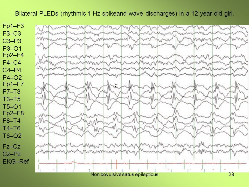Non covulsive satus epilepticus28 Bilateral PLEDs (rhythmic 1 Hz spikeand-wave discharges) in a 12-year-old girl. 3 Fp1–F3 F3–C3 C3–P3 P3–O1 Fp2–F4 F4
