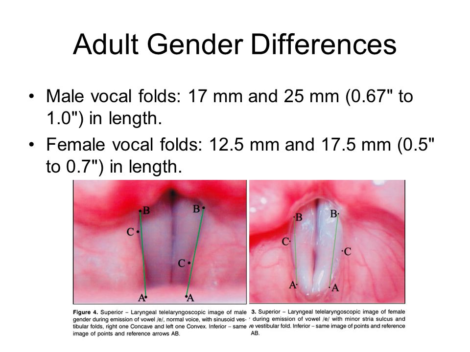 Adult Gender Differences Male vocal folds: 17 mm and 25 mm (0.67 to 1.0 ) in length.