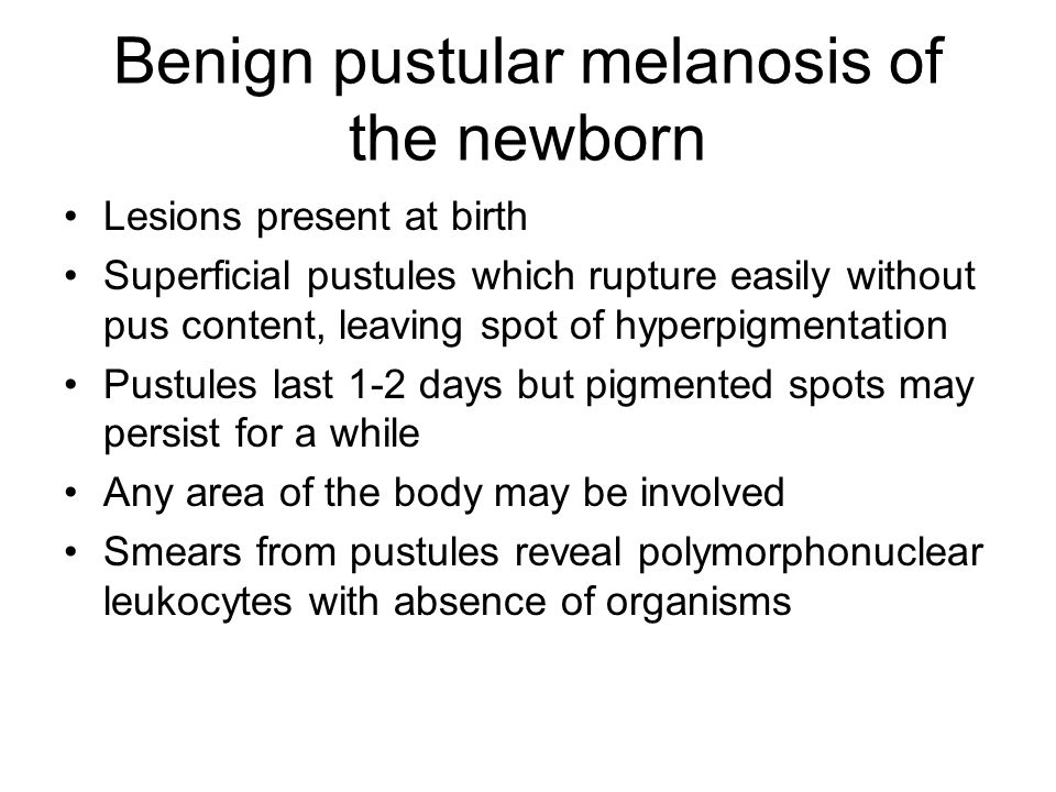 Benign pustular melanosis of the newborn Lesions present at birth Superficial pustules which rupture easily without pus content, leaving spot of hyper