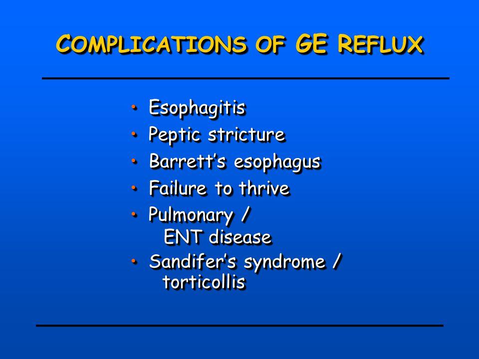 C OMPLICATIONS OF GE R EFLUX Esophagitis Esophagitis Peptic stricture Peptic stricture Barrett's esophagus Barrett's esophagus Failure to thrive Failure to thrive Pulmonary / Pulmonary / ENT disease ENT disease Sandifer's syndrome / Sandifer's syndrome / torticollis Esophagitis Esophagitis Peptic stricture Peptic stricture Barrett's esophagus Barrett's esophagus Failure to thrive Failure to thrive Pulmonary / Pulmonary / ENT disease ENT disease Sandifer's syndrome / Sandifer's syndrome / torticollis