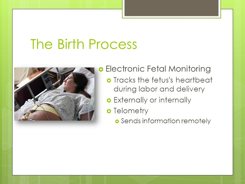The Birth Process  Electronic Fetal Monitoring  Tracks the fetus ' s heartbeat during labor and delivery  Externally or internally  Telometry  Se