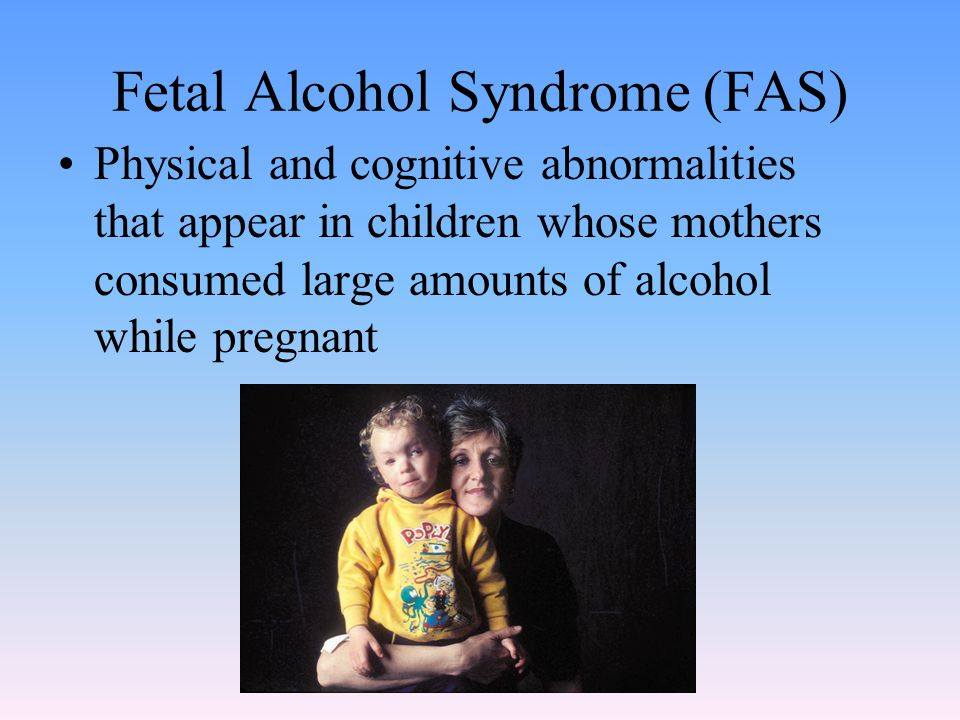 Fetal Alcohol Syndrome (FAS) Physical and cognitive abnormalities that appear in children whose mothers consumed large amounts of alcohol while pregna