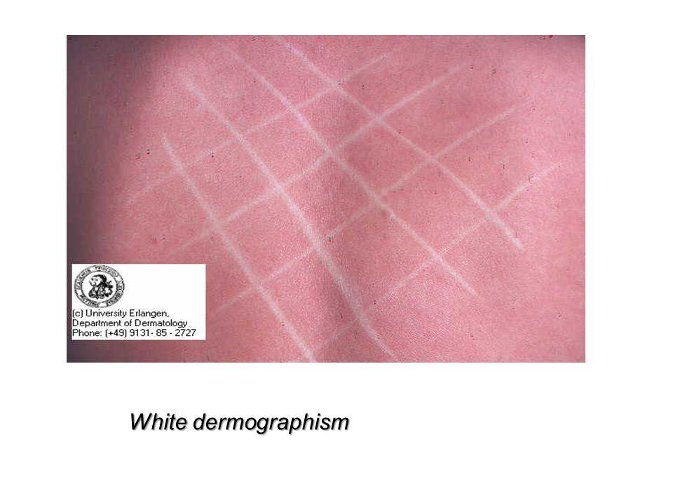 White dermographism