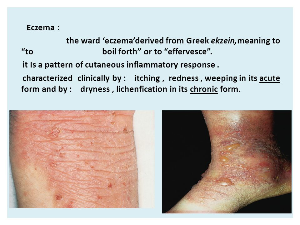 """Eczema : the ward 'eczema'derived from Greek ekzein,meaning to """"to boil forth"""" or to """"effervesce"""". it Is a pattern of cutaneous inflammatory response."""