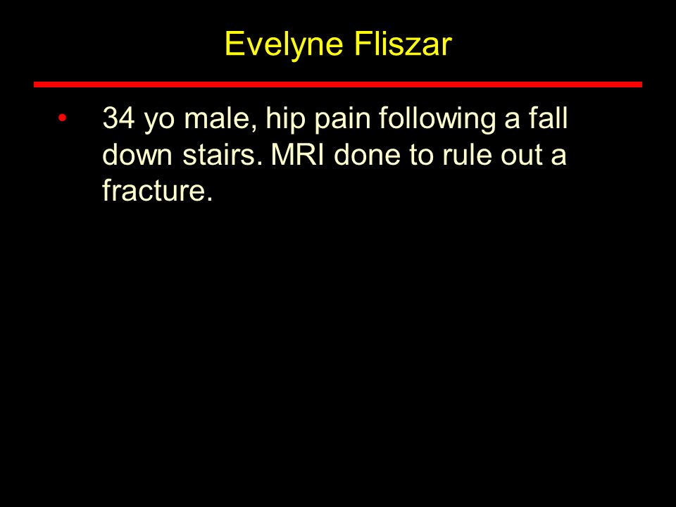 Evelyne Fliszar 34 yo male, hip pain following a fall down stairs. MRI done to rule out a fracture.