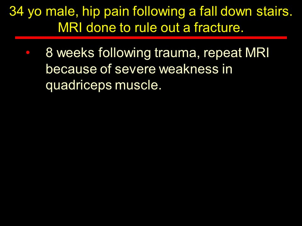 34 yo male, hip pain following a fall down stairs.