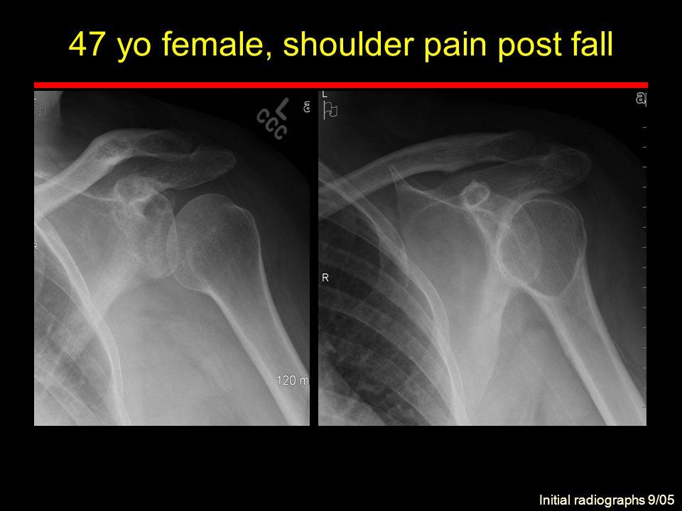 47 yo female, shoulder pain post fall 6 weeks later, 11/05