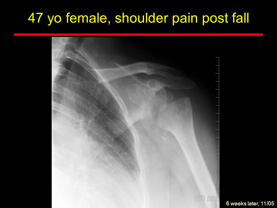 47 yo female, shoulder pain post fall Bone marrow edema Effusion Malalignment High grade rotator cuff tear Osseous destruction Coronal T2 w 11/05