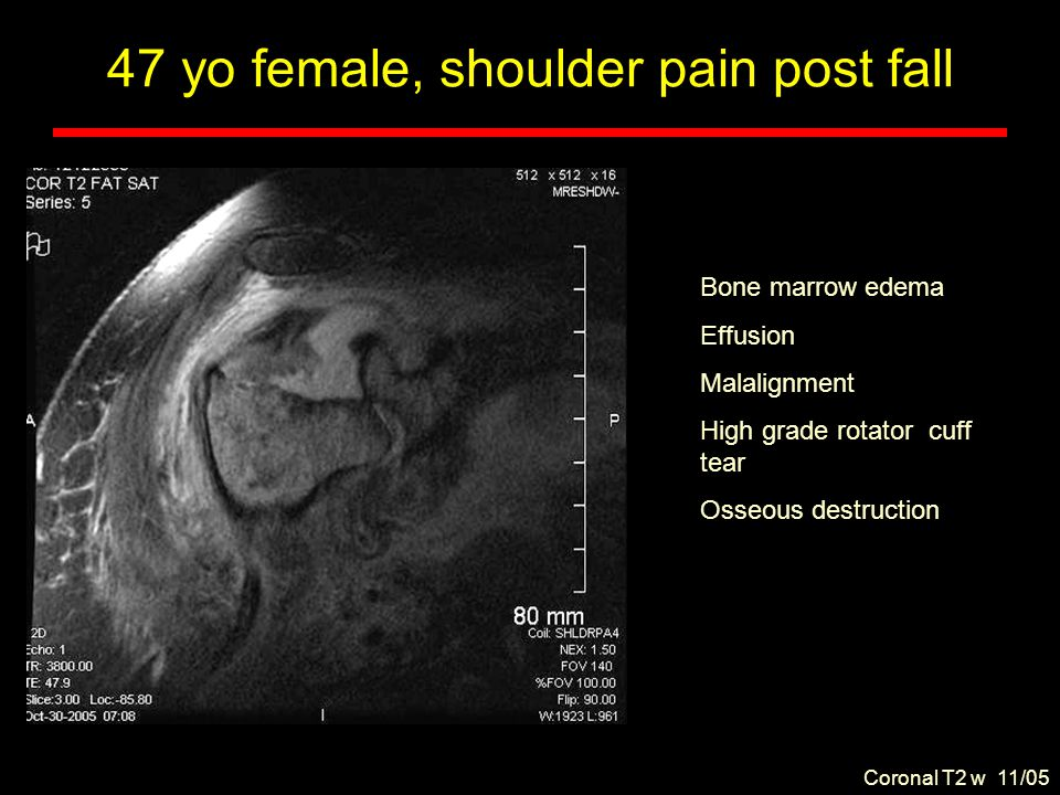 T2 Axial FS and post IV contrast 47 yo female, shoulder pain post fall