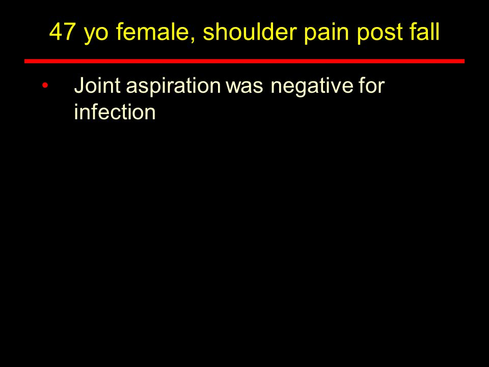 Joint aspiration was negative for infection