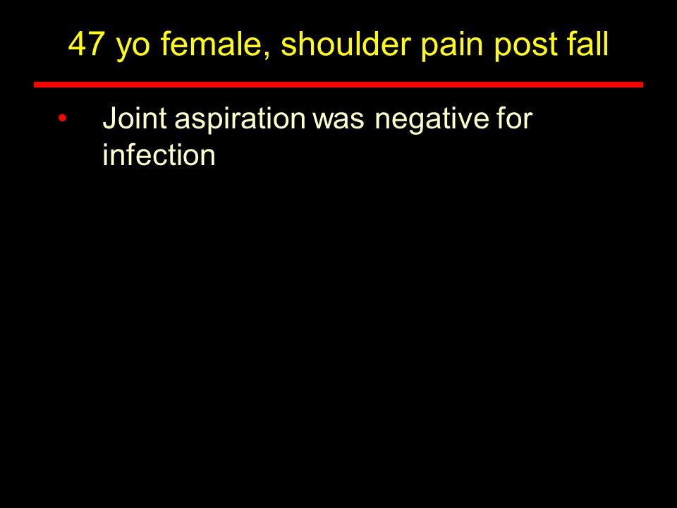 47 yo female, shoulder pain post fall Sagittal T2w of cervical spine, 2002