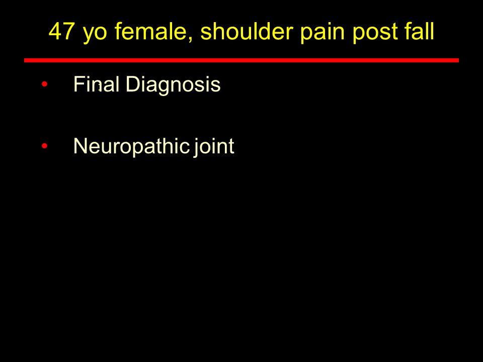 47 yo female, shoulder pain post fall Final Diagnosis Neuropathic joint :