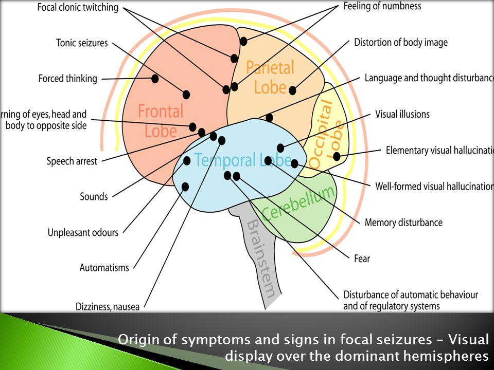 Origin of symptoms and signs in focal seizures - Visual display over the dominant hemispheres