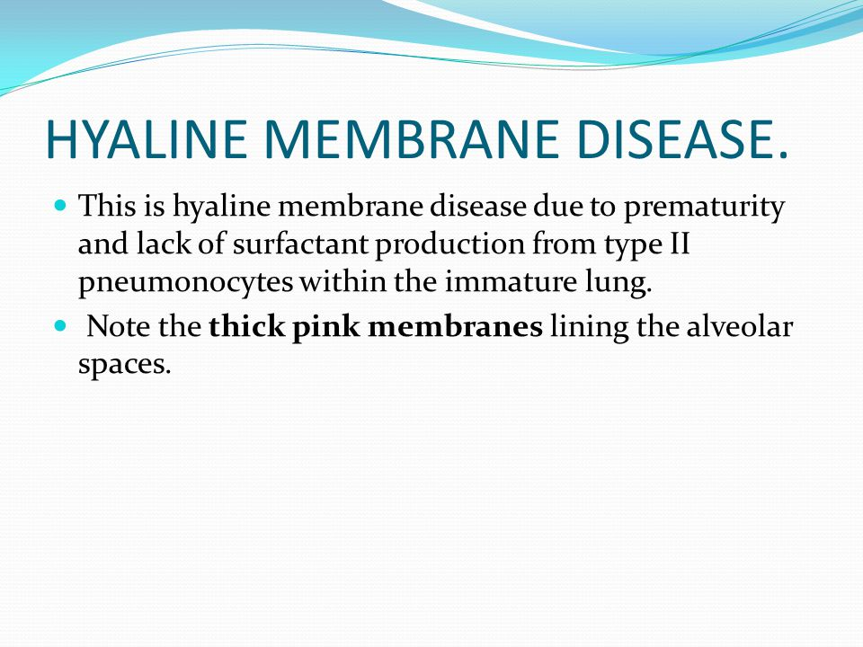 HYALINE MEMBRANE DISEASE. This is hyaline membrane disease due to prematurity and lack of surfactant production from type II pneumonocytes within the